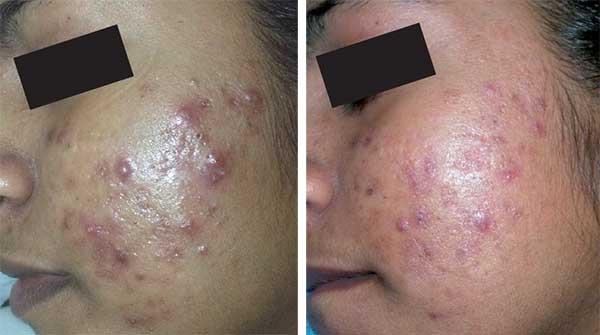 laser-ipl-acne