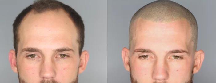 prima-dopo-micropigmentazione-capelli