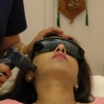 Trattamento Laser per le rughe, macchie, capillari e cicatrici
