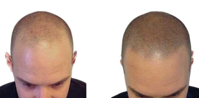 autotrapianto-capelli-prima-dopo
