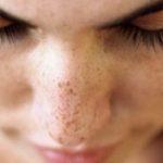 Macchie scure sul viso cosa sono e come si eliminano