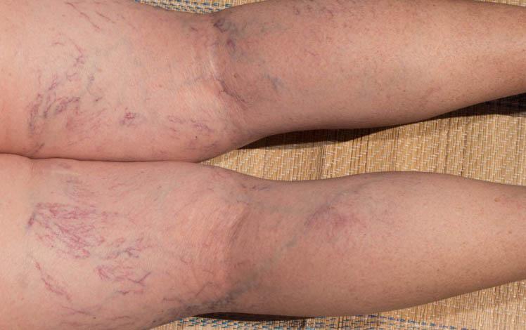 terapia-sclerosante-gambe