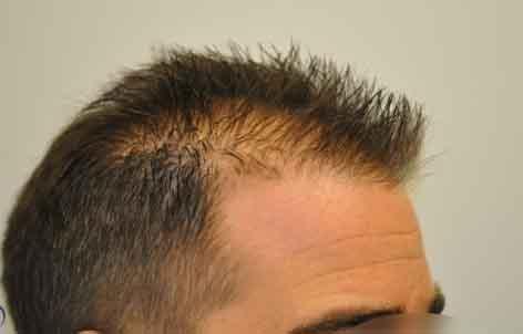 diradamento-frontale-capelli