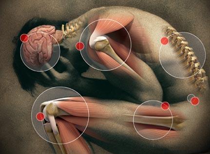 fibromialgia dolore