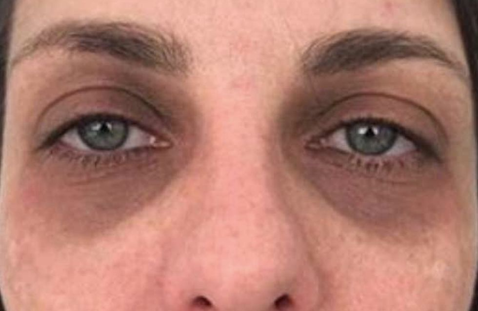 occhiaie-marroni-rimedi