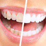 Migliori alimenti per sbiancare i denti