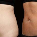 Liposuzione senza Chirurgia, le alternative