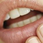Rimedi per l'Herpes alle labbra, come si Contagia