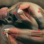 Fibromialgia i Sintomi quando capire che si tratta della Malattia