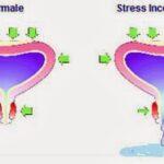 Incontinenza Urinaria da Stress o Sforzo Rimedi e Cause